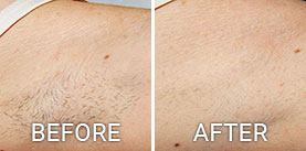 Before & After Photos Laser Hair Removal