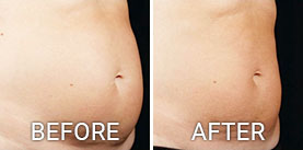 Before & After Photos Sculpsure