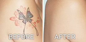 Before & After Photos Tattoo Removal