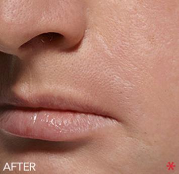Belotero Before & After Patient #4246