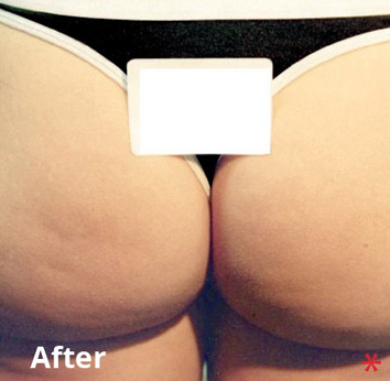 BodyFX Before & After Patient #4249