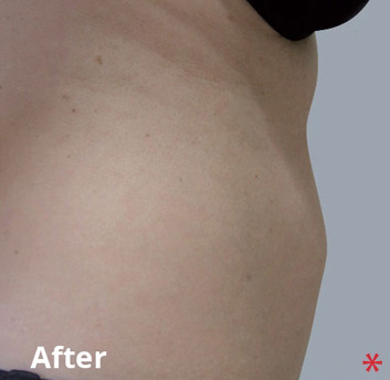 BodyFX Before & After Patient #4259