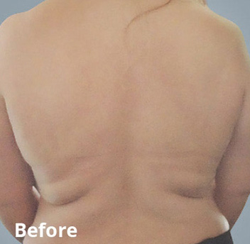 BodyFX Before & After Patient #4260