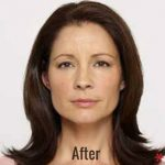 Botox Before & After Patient #4264