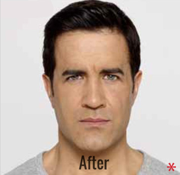 Botox Before & After Patient #4267