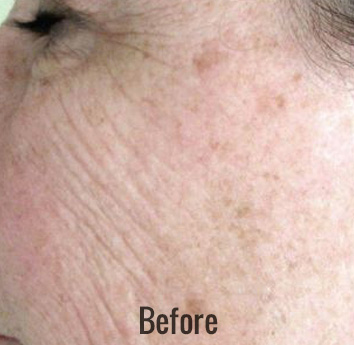 Chemical Peel Before & After Patient #4270