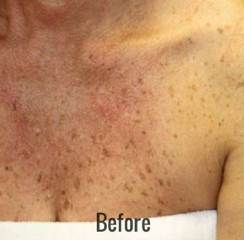 Chemical Peel Before & After Patient #4273