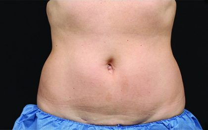 CoolSculpting Before & After Patient #4283