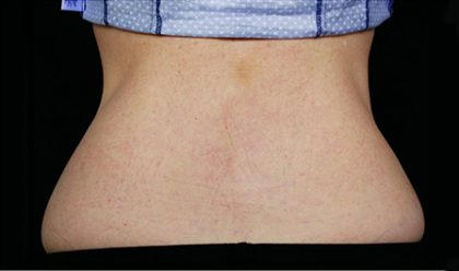 CoolSculpting Before & After Patient #4284