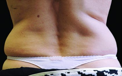 CoolSculpting Before & After Patient #4287