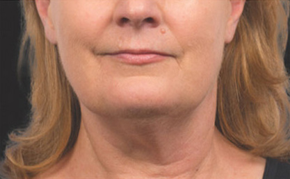 CoolSculpting Before & After Patient #4562