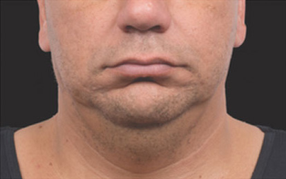 CoolSculpting Before & After Patient #4568