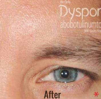 Dysport Before & After Patient #4290