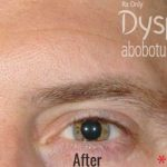Dysport Before & After Patient #4293