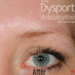 Dysport Before & After Patient #4296