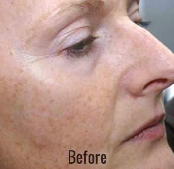 Photofacial Before & After Patient #4384
