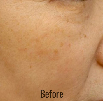 Photofacial Before & After Patient #4385