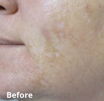 Fractora Firm Before & After Patient #4299