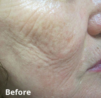 Fractora Firm Before & After Patient #4302