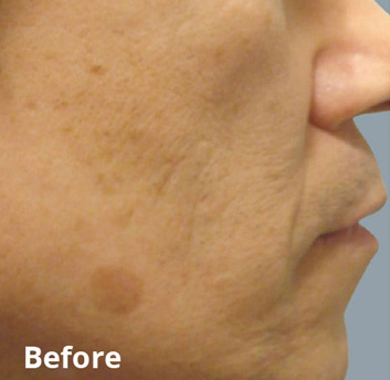Fractora Firm Before & After Patient #4305