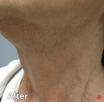 Fractora Firm Before & After Patient #4308