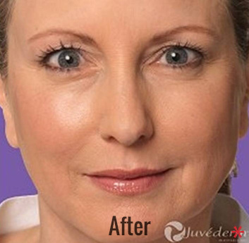 Juvederm Before & After Patient #4311