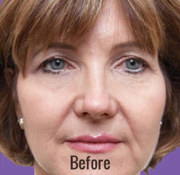 Juvederm Before & After Patient #4314