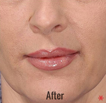 Juvederm Before & After Patient #4317