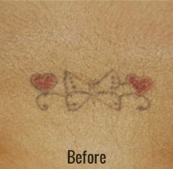 Laser Tattoo Removal Before & After Patient #4347