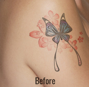 Laser Tattoo Removal Before & After Patient #4352