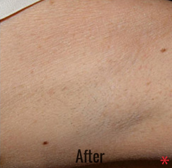 Laser Hair Removal Before & After Patient #4329