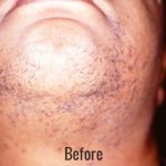 Laser Hair Removal Before & After Patient #4336