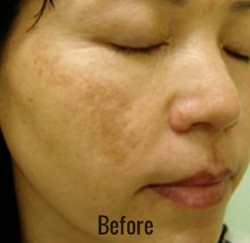 Laser Peel Toning Before & After Patient #4338