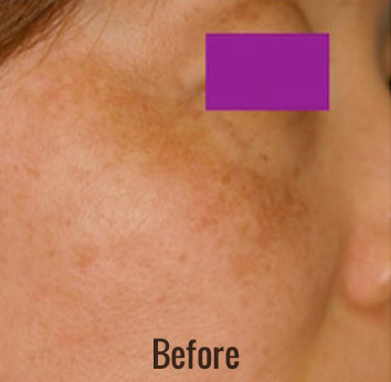 Laser Peel Toning Before & After Patient #4345