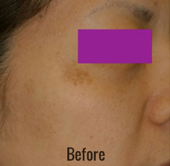 Laser Peel Toning Before & After Patient #4346