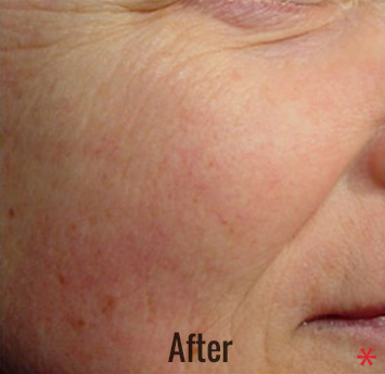 Laser Genesis Before & After Patient #4320