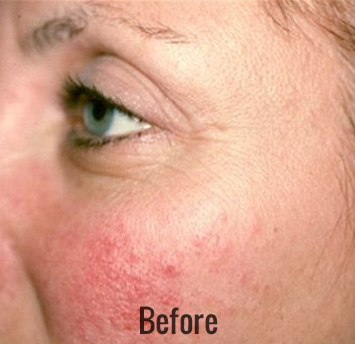 Laser Genesis Before & After Patient #4326