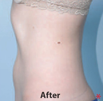 Medsculpt Before & After Patient #4353
