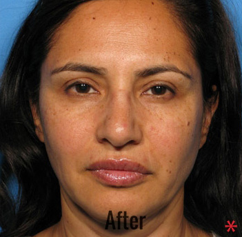 Oxygen Facial Before & After Patient #4368