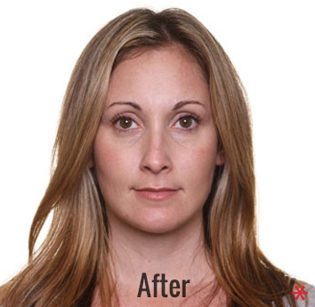 Oxygen Facial Before & After Patient #4375