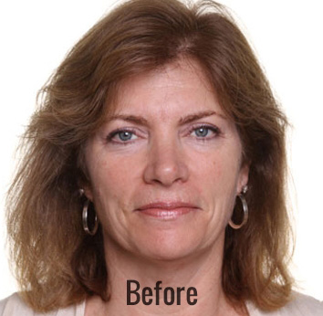 Oxygen Facial Before & After Patient #4376