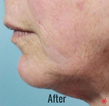 Portrait Plasma Before & After Patient #4386