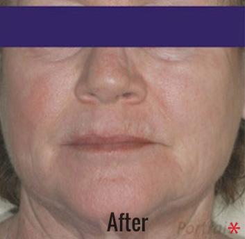 Portrait Plasma Before & After Patient #4393