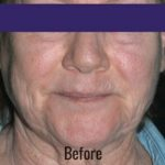 Portrait Plasma Before & After Patient #4393