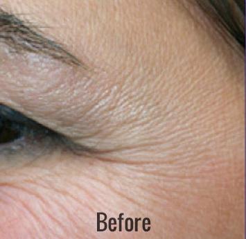 Portrait Plasma Before & After Patient #4394