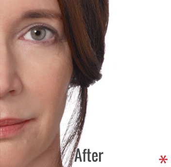 Radiesse Before & After Patient #4395