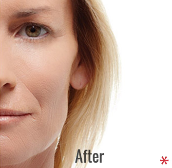 Radiesse Before & After Patient #4411