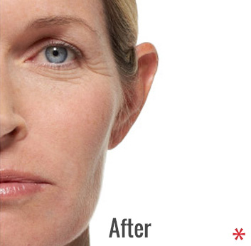 Radiesse Before & After Patient #4412