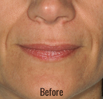 Restylane Before & After Patient #4416