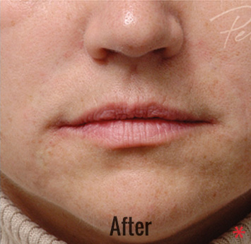 Restylane Before & After Patient #4423